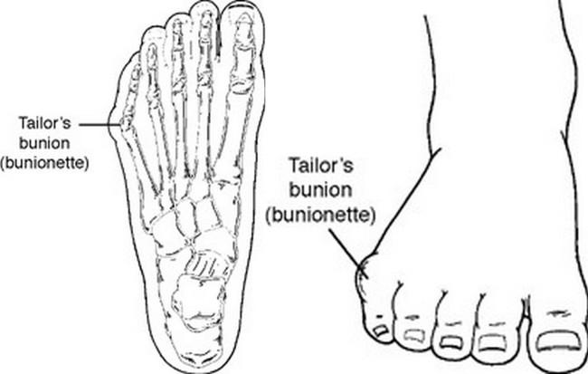 tailors bunion